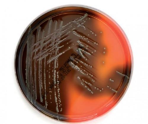 Zahl der Campylobacteriose-Fälle stabil, weitere Zunahme bei Listeriosen – EFSA und ECDC legen Zoonosenbericht vor